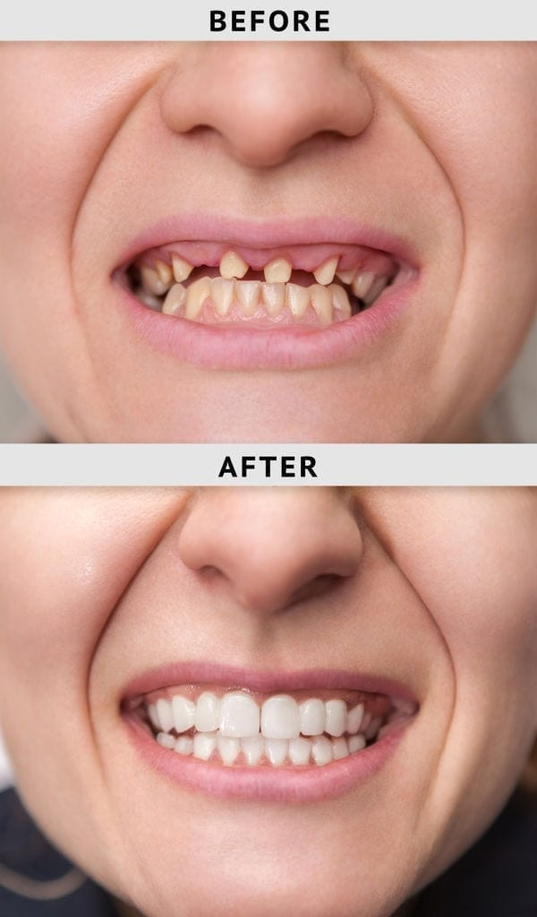 dental implant before and after in Cornelius NC