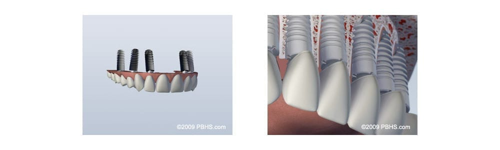 upper teeth replacement options in Cornelius NC
