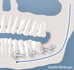 tooth crowding requires wisdom tooth removal in Cornelius NC