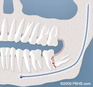 tooth damage requires wisdom tooth removal in Cornelius NC