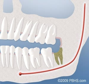 dry sockets following wisdom tooth extractions in Cornelius NC