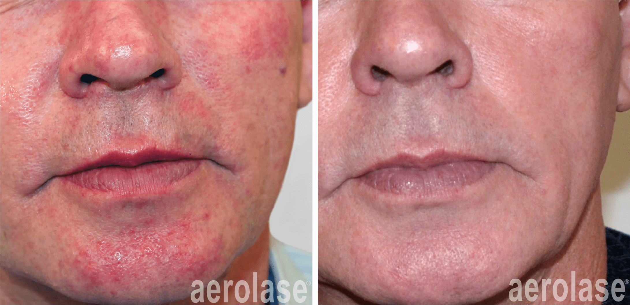 before and after 2 treatments of neoskin in cornelius