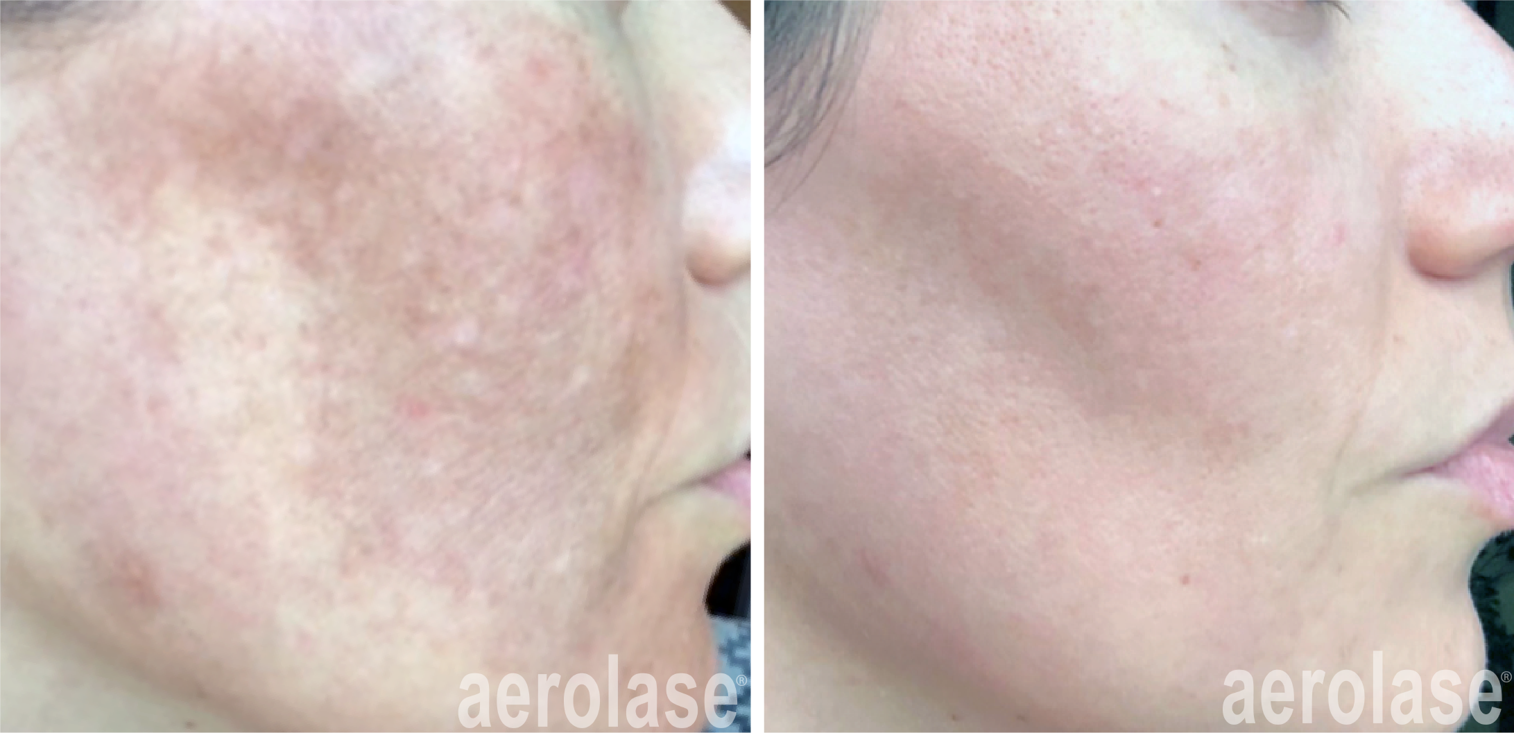 neoskin treatment for melasma in cornelius nc