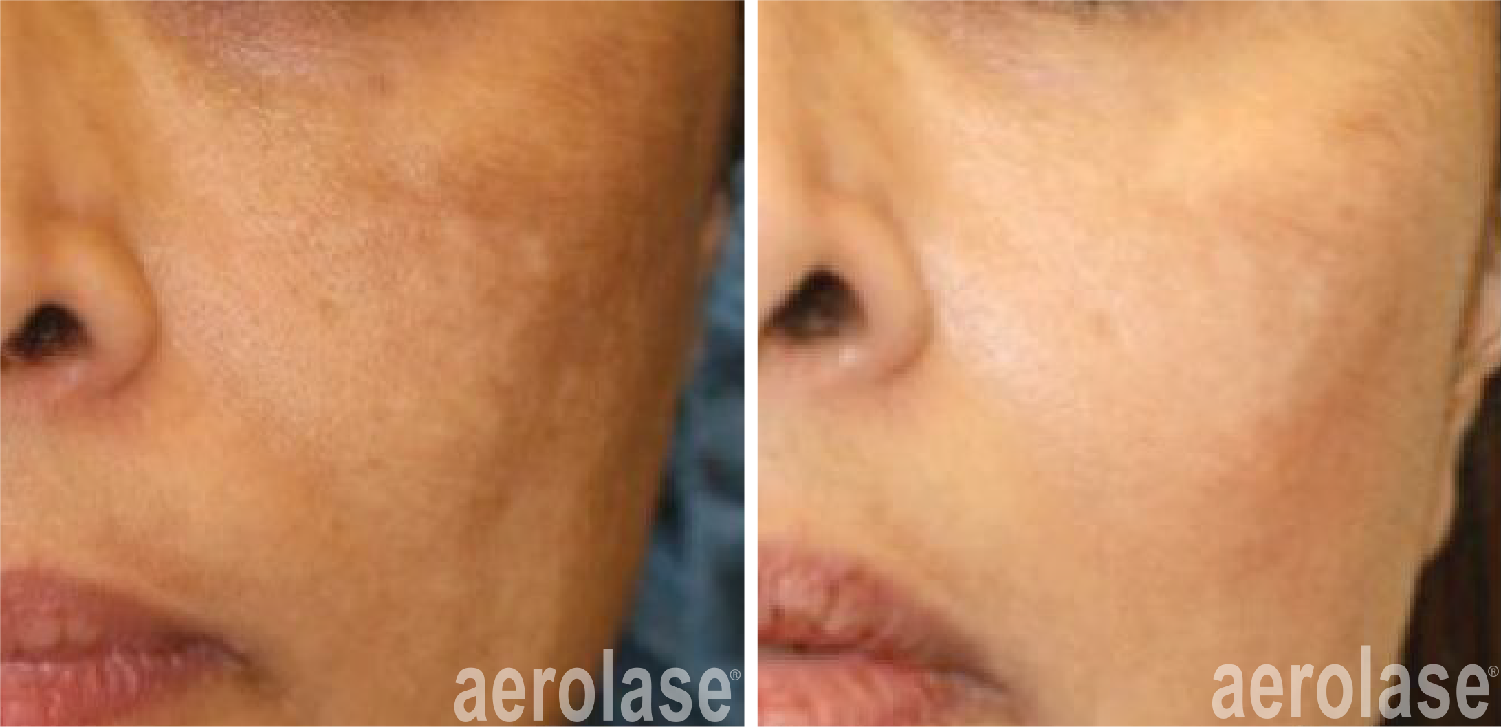 before and after neoskin treatment on cheeks in cornelius