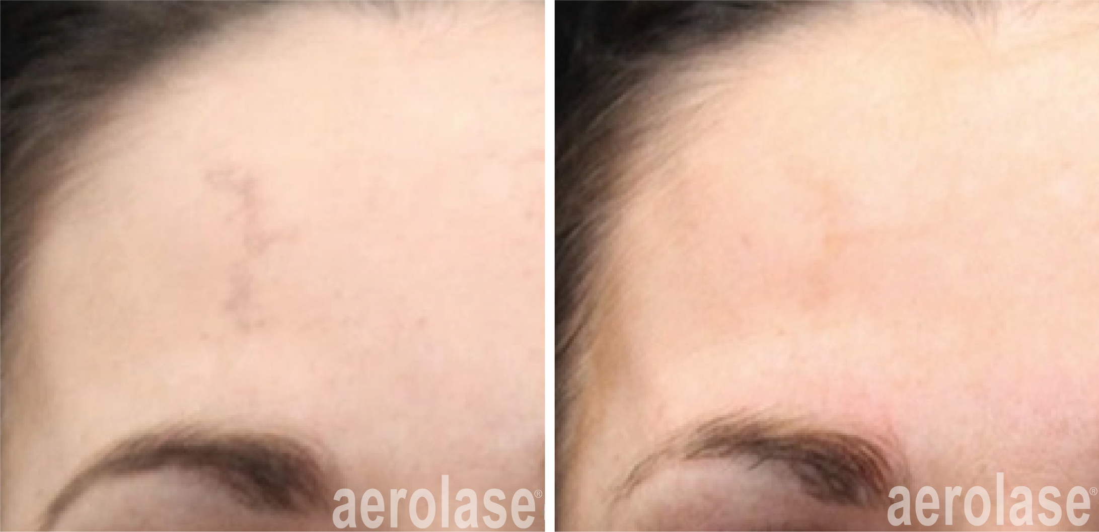 improved scar appearance after 1 treatment with neoskin in cornelius nc