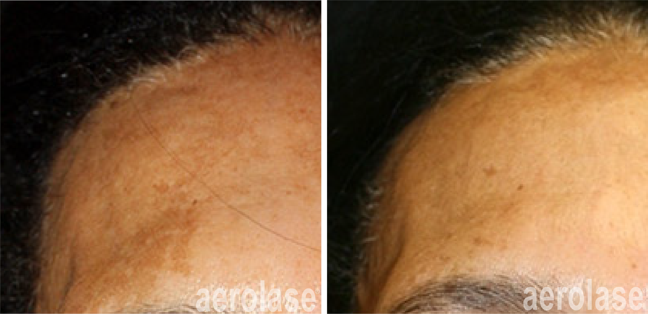 improved facial skin texture after 1 neoskin treatment in cornelius