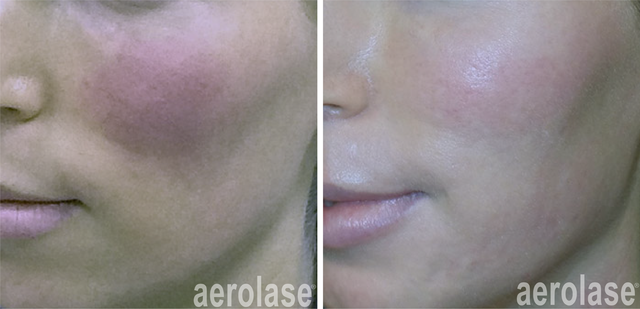 reduced facial redness with neoskin treatment in cornelius nc