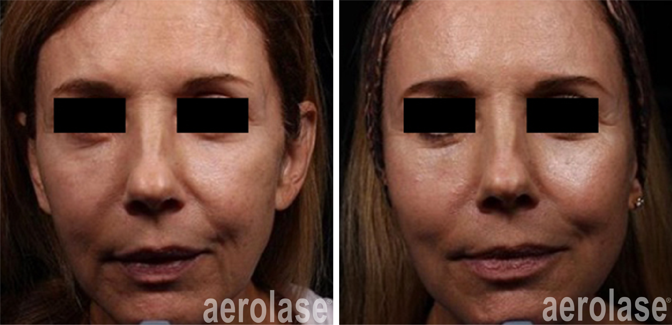 skin rejuvenation with neoskin procedure in cornelius nc