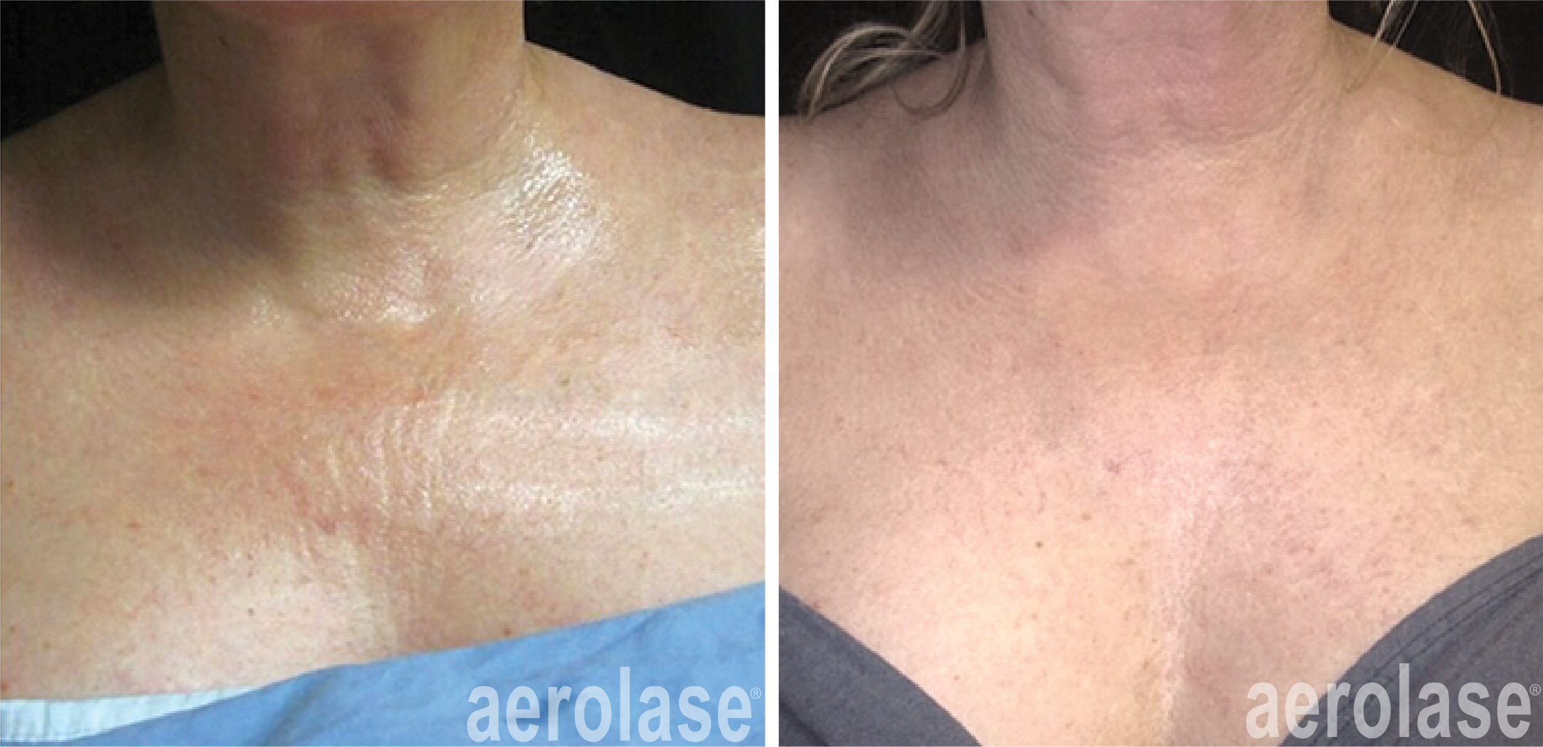neoskin treatment on chest in cornelius nc