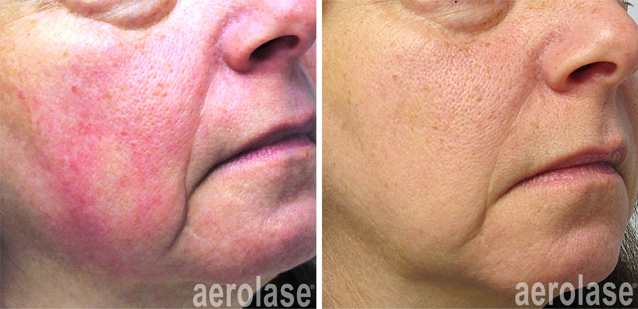 neoskin treatment for facial redness in cornelius