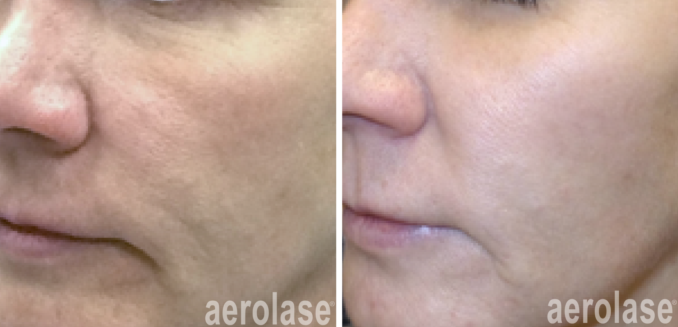 neoskin treatment for improved skin texture in cornelius